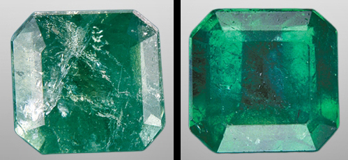 emerald fracture filling before and after example